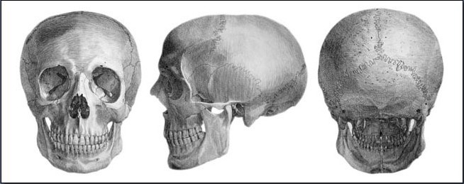 Fig. 6-1 Some of the more prominent features of the skull that affect the contours of the face are the forehead, eye sockets, nasal bone, cheekbones, the empty pockets between the jaw and cheekbones, and the chin.