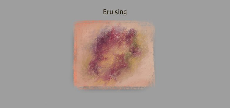 bruising digital art design