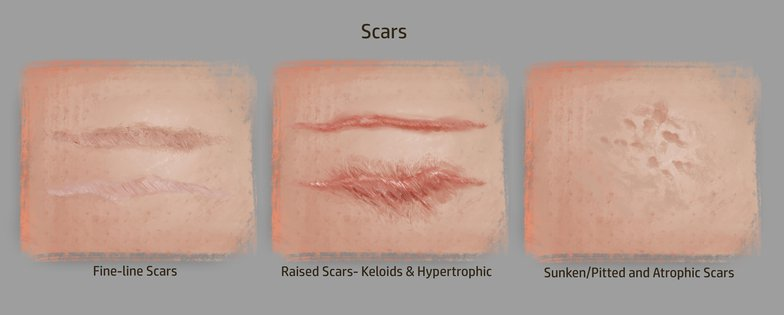 scars digital painting