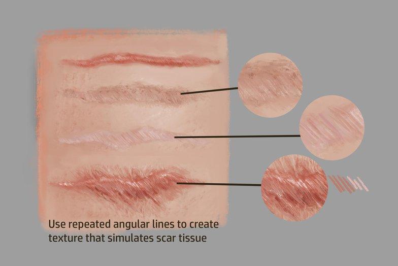 scarring tissue texturing art